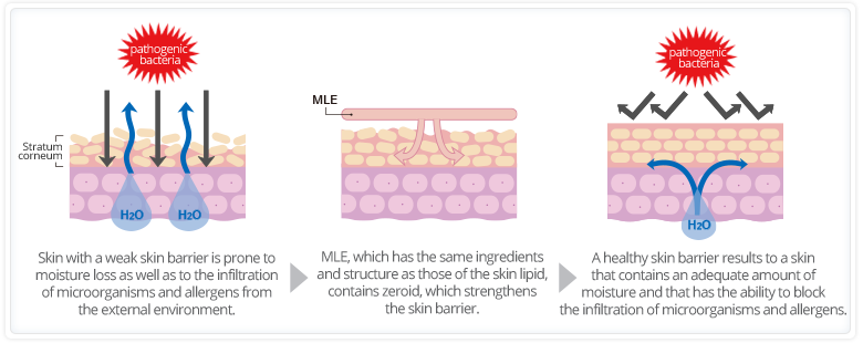 step1:Skin with a weak skin barrier is prone to moisture loss as well as to the infiltration of microorganisms and allergens from the external environment./step2:MLE, which has the same compounds and structure as those of the skin lipid, contains zeroid, which strengthens the skin barrier./step3:A healthy skin barrier results to a skin that contains an adequate amount of moisture and that has the ability to block the infiltration of microorganisms and allergens.